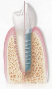 Sağlıklı Diş ve Titanyum Vidalı Diş İmplantı.